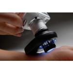 DermLite II Pro-HR Dermatoscope